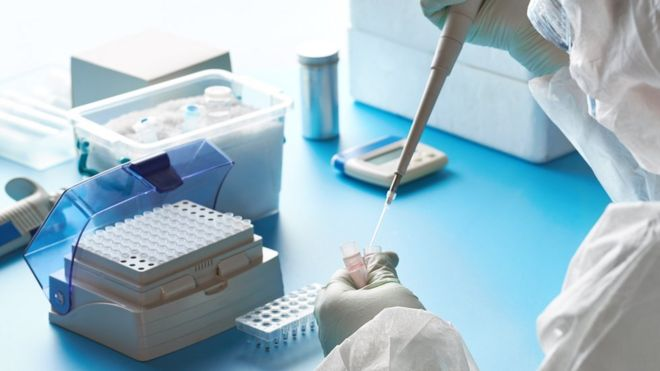 ANTIBODY TEST WITH IN-OFFICE BLOOD DRAW in Alexandria, VA
